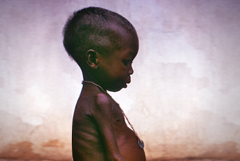 A girl shown suffering the effects of severe hunger and malnutrition.